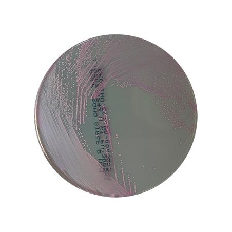 agar-cromo-strep-b-tamizaje-estreptococcus-agalactiae-mdm-cientifica