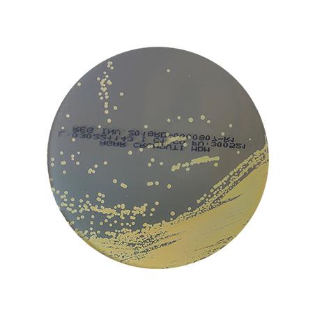 agar-cromo-uti-cromogenico-orina-staphyococcus-saprophyticus-amarillo