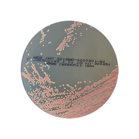 agar-cromo-uti-cromogenico-orina-staphyococcus-saprophyticus-rosado